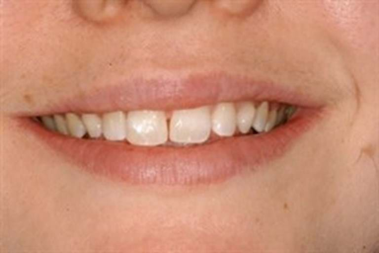 Narrowing the gap between teeth repairing fractured corner