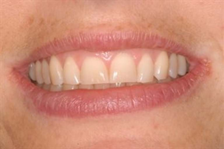 Lengthening teeth that have been worn flat