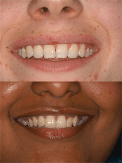Examples of our cosmetic dentistry in Melbourne